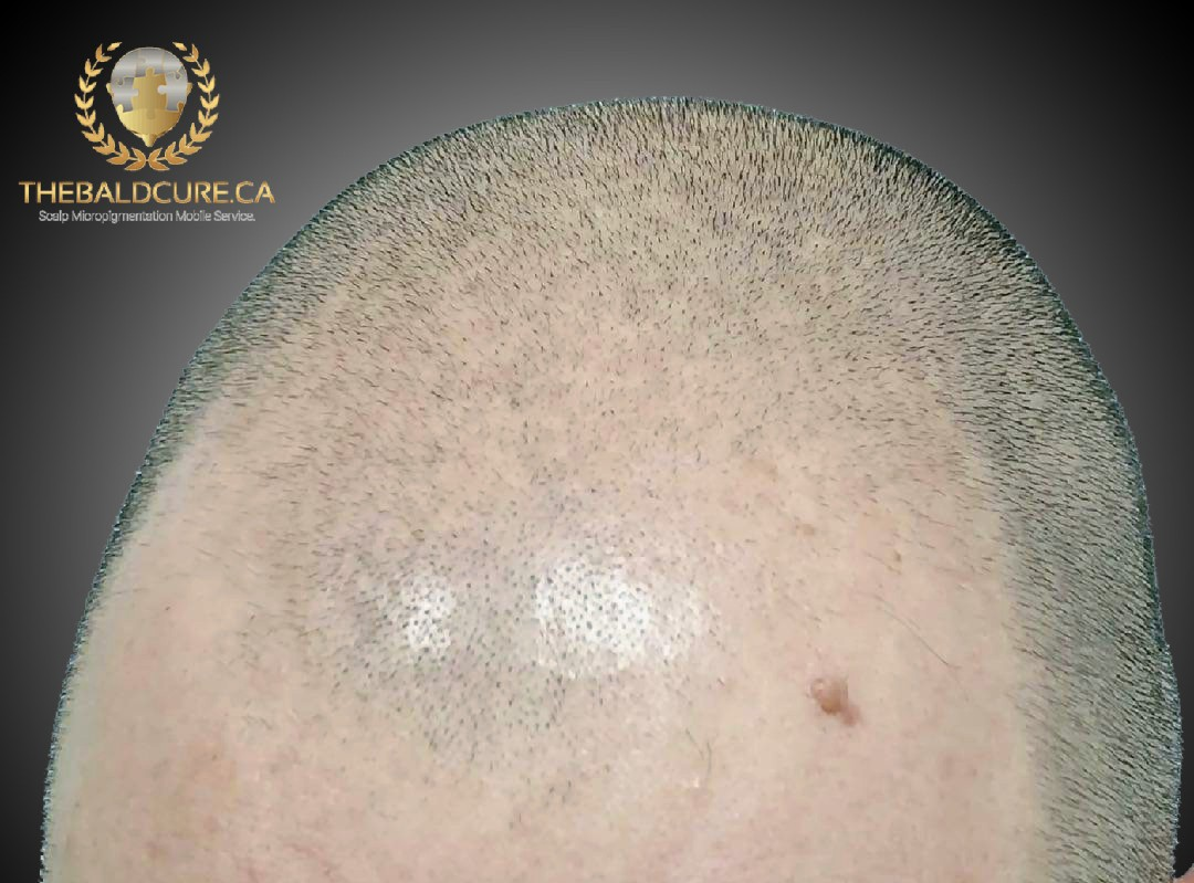The Bald Cure Mobile Service In The Comfort Of Your Home We Beat Any Price 15_2-1 Pictures. Explore Our Photo Gallery