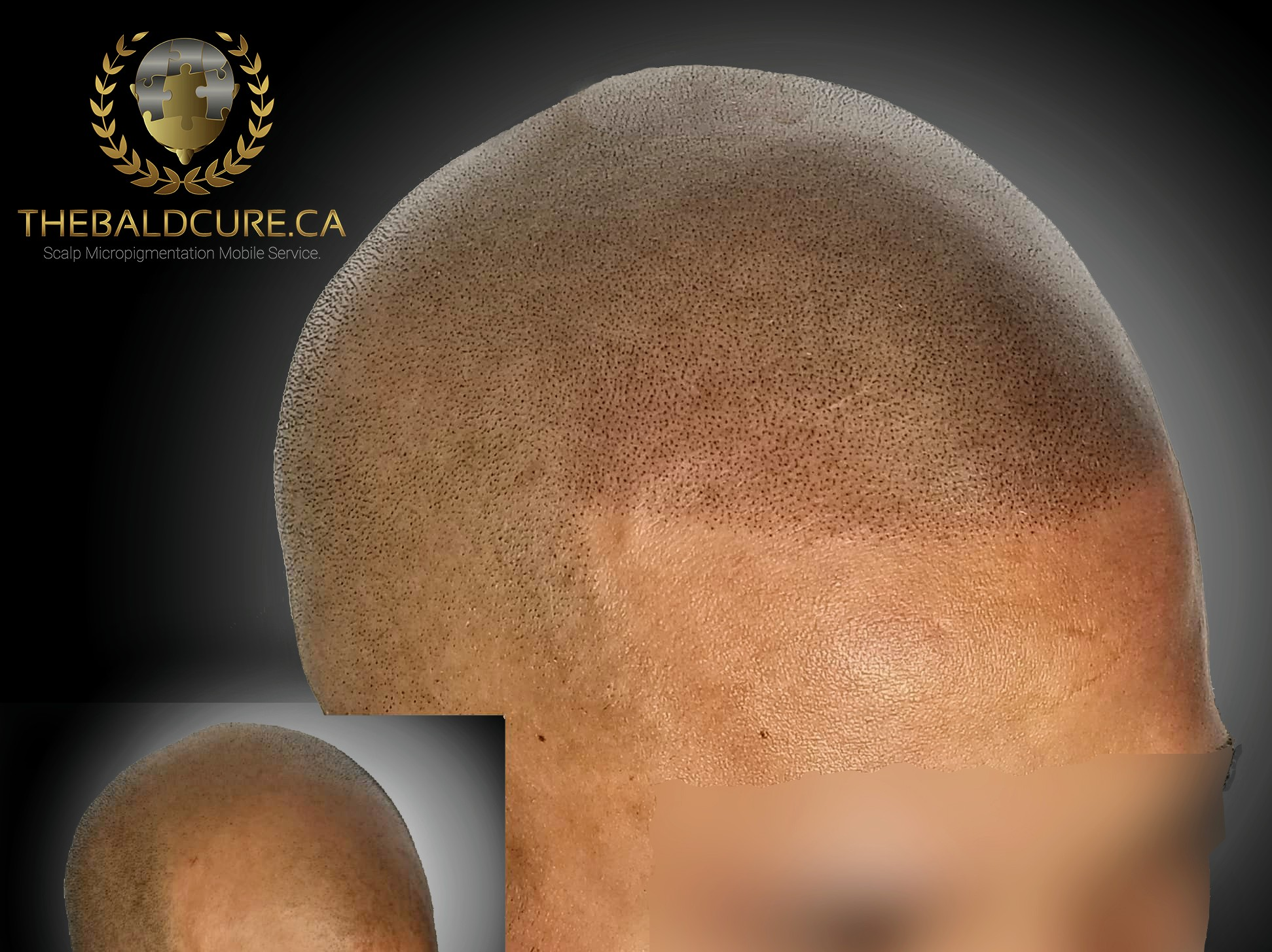 The Bald Cure Mobile Service In The Comfort Of Your Home We Beat Any Price 5_2-2 Pictures. Explore Our Photo Gallery