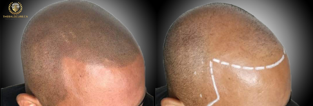 The Bald Cure Mobile Service In The Comfort Of Your Home We Beat Any Price 6-1-1 Pictures. Explore Our Photo Gallery