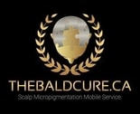 The Bald Cure Mobile Service In The Comfort Of Your Home We Beat Any Price