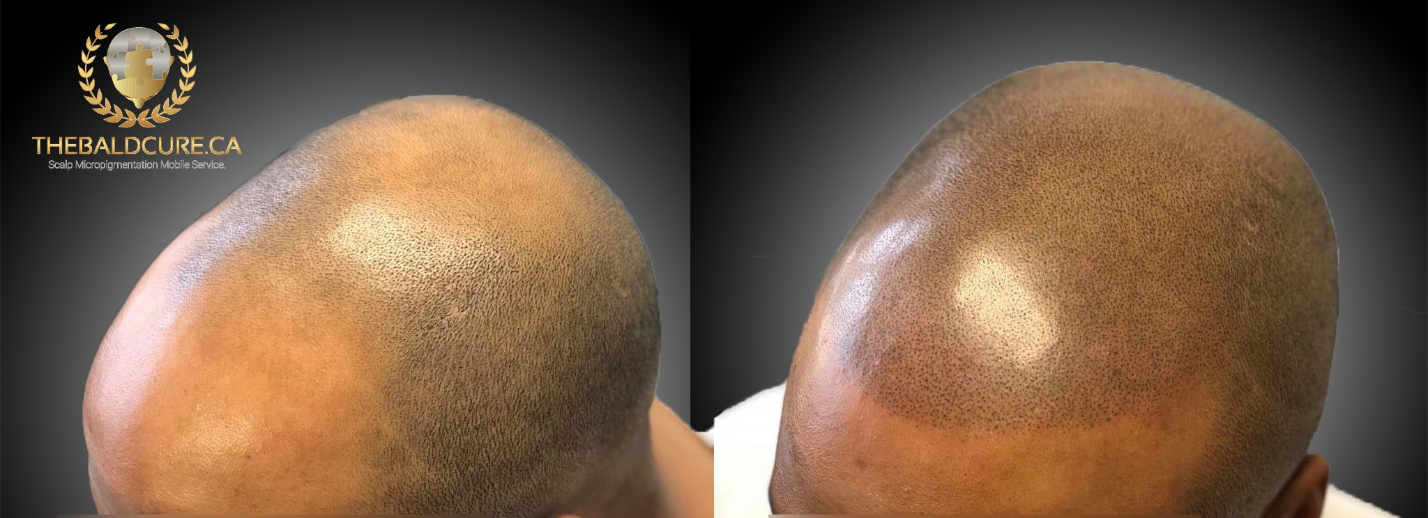 The Bald Cure Mobile Service In The Comfort Of Your Home We Beat Any Price 1 Pictures. Explore Our Photo Gallery
