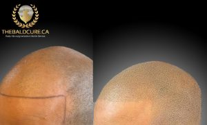 The Bald Cure Mobile Service In The Comfort Of Your Home We Beat Any Price 4-300x182 Gallery