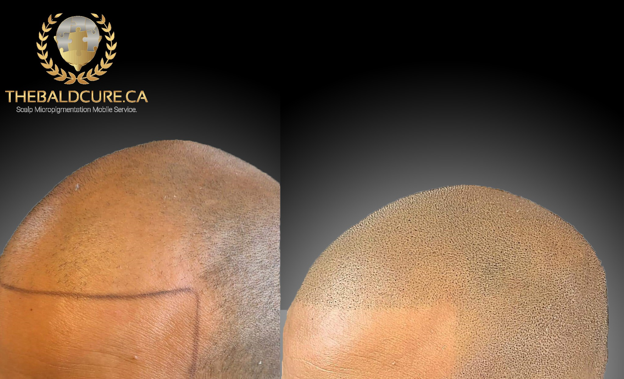 The Bald Cure Mobile Service In The Comfort Of Your Home We Beat Any Price  Pictures. Explore Our Photo Gallery