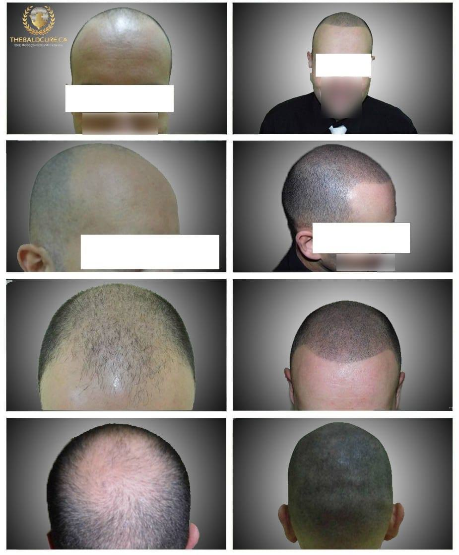 The Bald Cure Mobile Service In The Comfort Of Your Home We Beat Any Price 51573065_870766936600682_1818560711576518656_n Before & After SMP Care Instructions