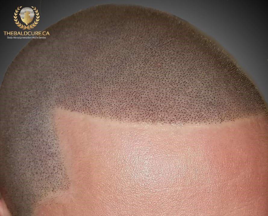 The Bald Cure Mobile Service In The Comfort Of Your Home We Beat Any Price FB_IMG_1549549655113 Pictures. Explore Our Photo Gallery