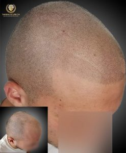 The Bald Cure Mobile Service In The Comfort Of Your Home We Beat Any Price desıgn-2-247x300 Gallery