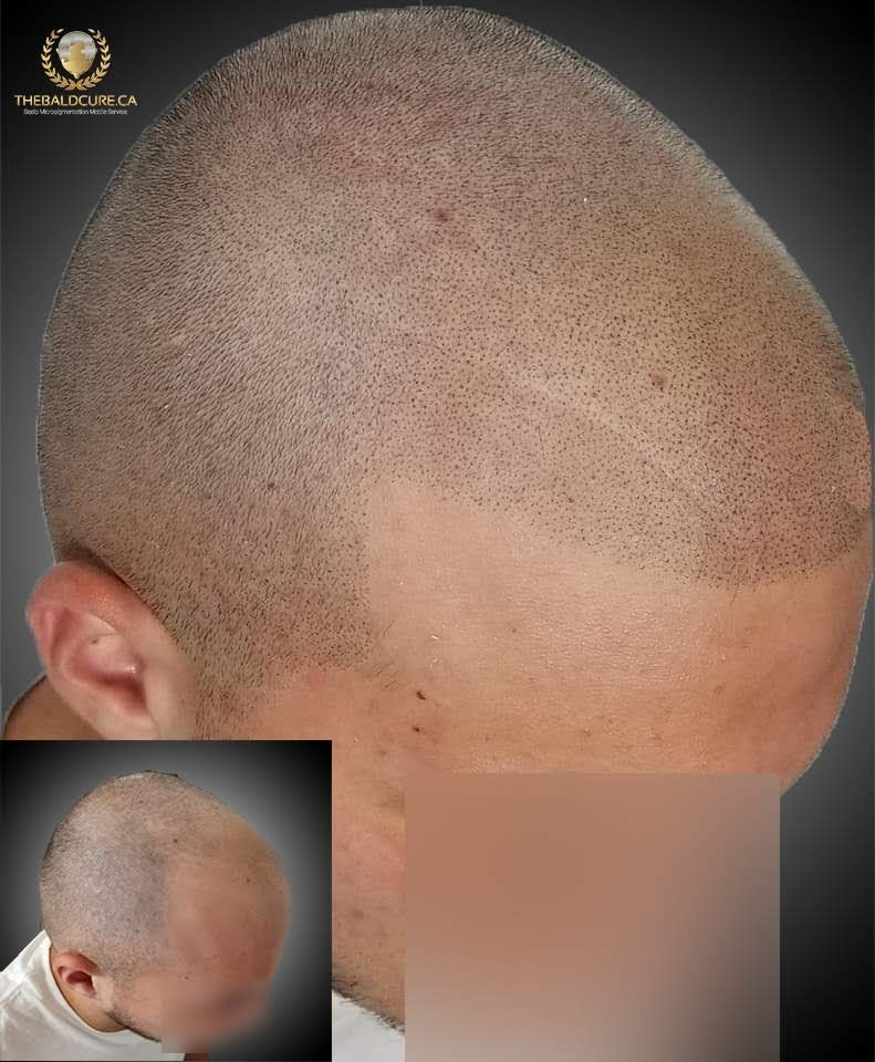 The Bald Cure Mobile Service In The Comfort Of Your Home We Beat Any Price desıgn-2 Pictures. Explore Our Photo Gallery
