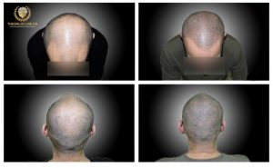 The Bald Cure Mobile Service In The Comfort Of Your Home We Beat Any Price redı-1-300x185 Gallery