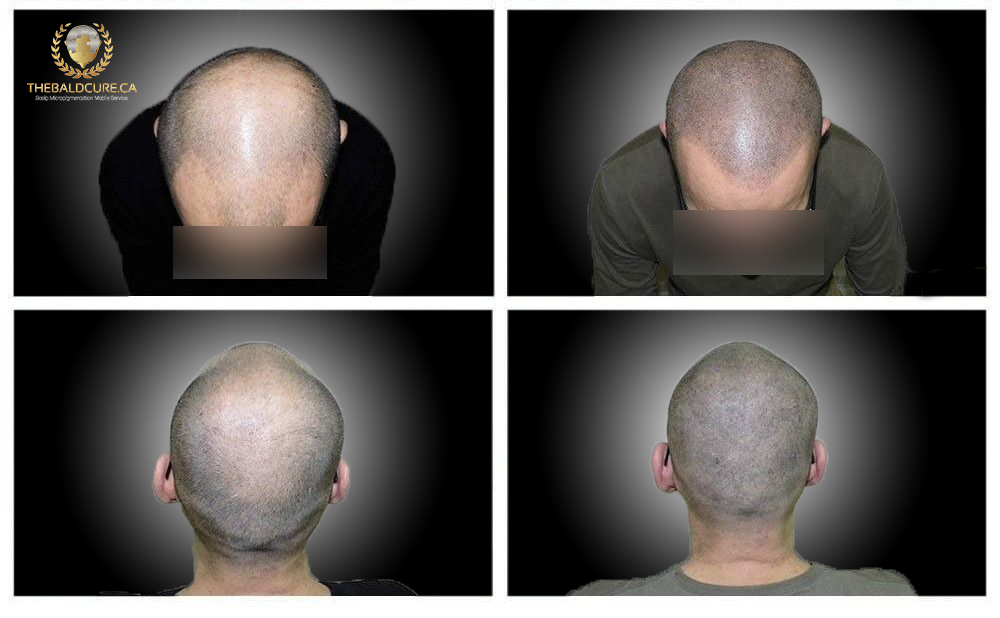 The Bald Cure Mobile Service In The Comfort Of Your Home We Beat Any Price redı Pictures. Explore Our Photo Gallery