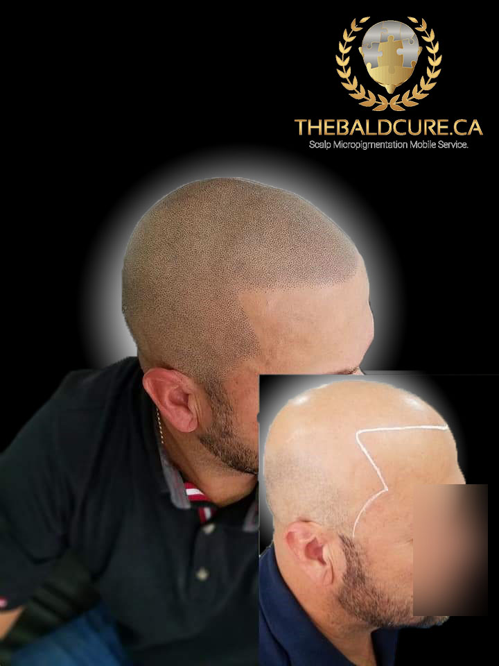 The Bald Cure Mobile Service In The Comfort Of Your Home We Beat Any Price 17-1 Pictures. Explore Our Photo Gallery