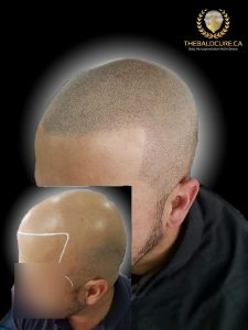 The Bald Cure Mobile Service In The Comfort Of Your Home We Beat Any Price 18-225x300 Gallery