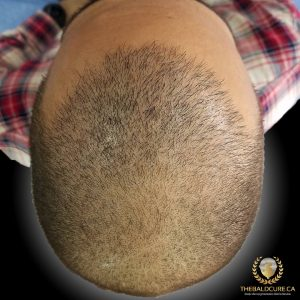 The Bald Cure Mobile Service In The Comfort Of Your Home We Beat Any Price 3-3-300x300 Gallery