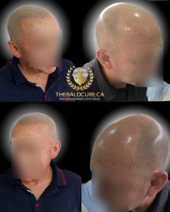 The Bald Cure Mobile Service In The Comfort Of Your Home We Beat Any Price 9-240x300 Gallery