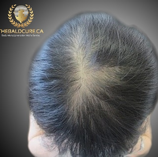 The Bald Cure Mobile Service In The Comfort Of Your Home We Beat Any Price IMG_20190423_123629_985 Pictures. Explore Our Photo Gallery