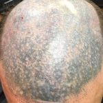 The Bald Cure Mobile Service In The Comfort Of Your Home We Beat Any Price FB_IMG_1573995414219-150x150 Gallery