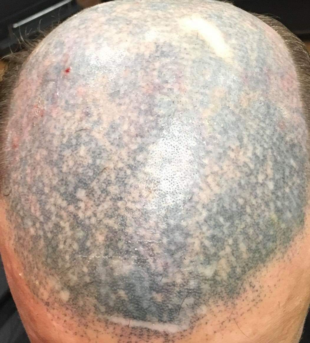 The Bald Cure Mobile Service In The Comfort Of Your Home We Beat Any Price FB_IMG_1573995414219 Pictures. Explore Our Photo Gallery