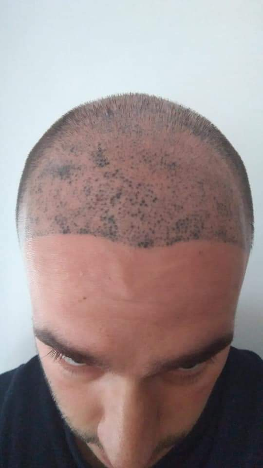 The Bald Cure Mobile Service In The Comfort Of Your Home We Beat Any Price FB_IMG_1576567674982 Pictures. Explore Our Photo Gallery