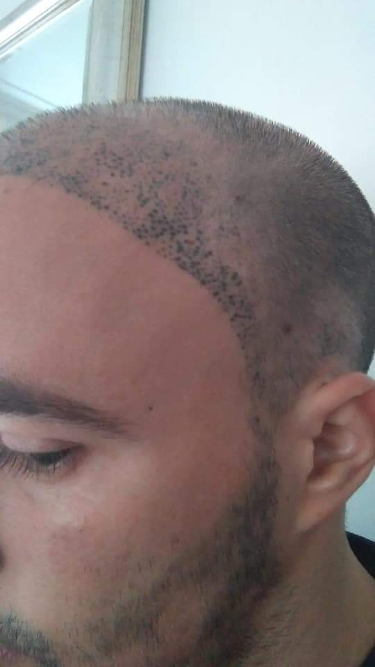 The Bald Cure Mobile Service In The Comfort Of Your Home We Beat Any Price FB_IMG_1576567679905 Pictures. Explore Our Photo Gallery