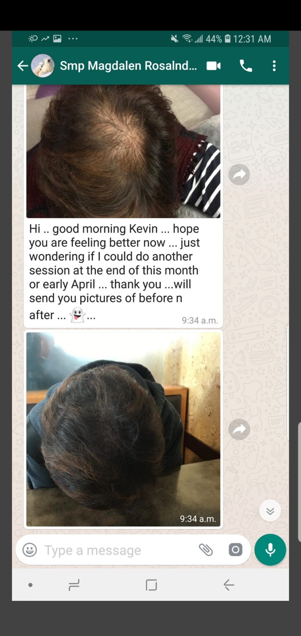 The Bald Cure Mobile Service In The Comfort Of Your Home We Beat Any Price Screenshot_20191107-195158_TextNow Pictures. Explore Our Photo Gallery