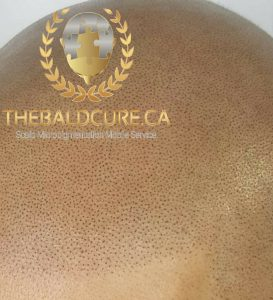 The Bald Cure Mobile Service In The Comfort Of Your Home We Beat Any Price PicsArt_01-28-01.45.54-273x300 Gallery