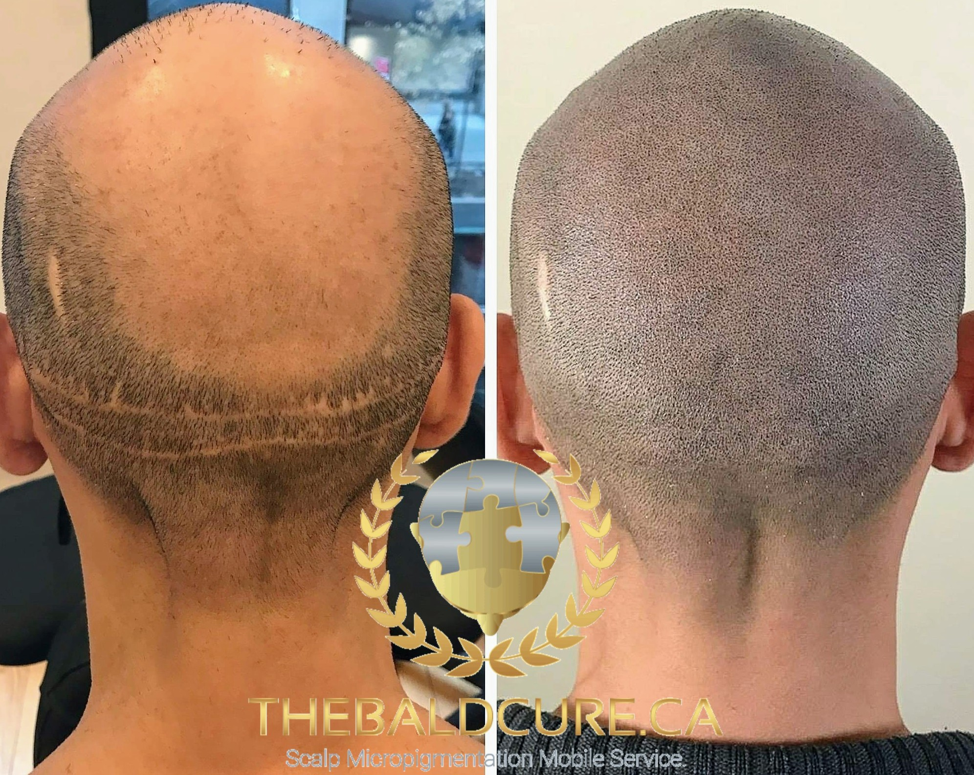 The Bald Cure Mobile Service In The Comfort Of Your Home We Beat Any Price PicsArt_02-21-01.59.202