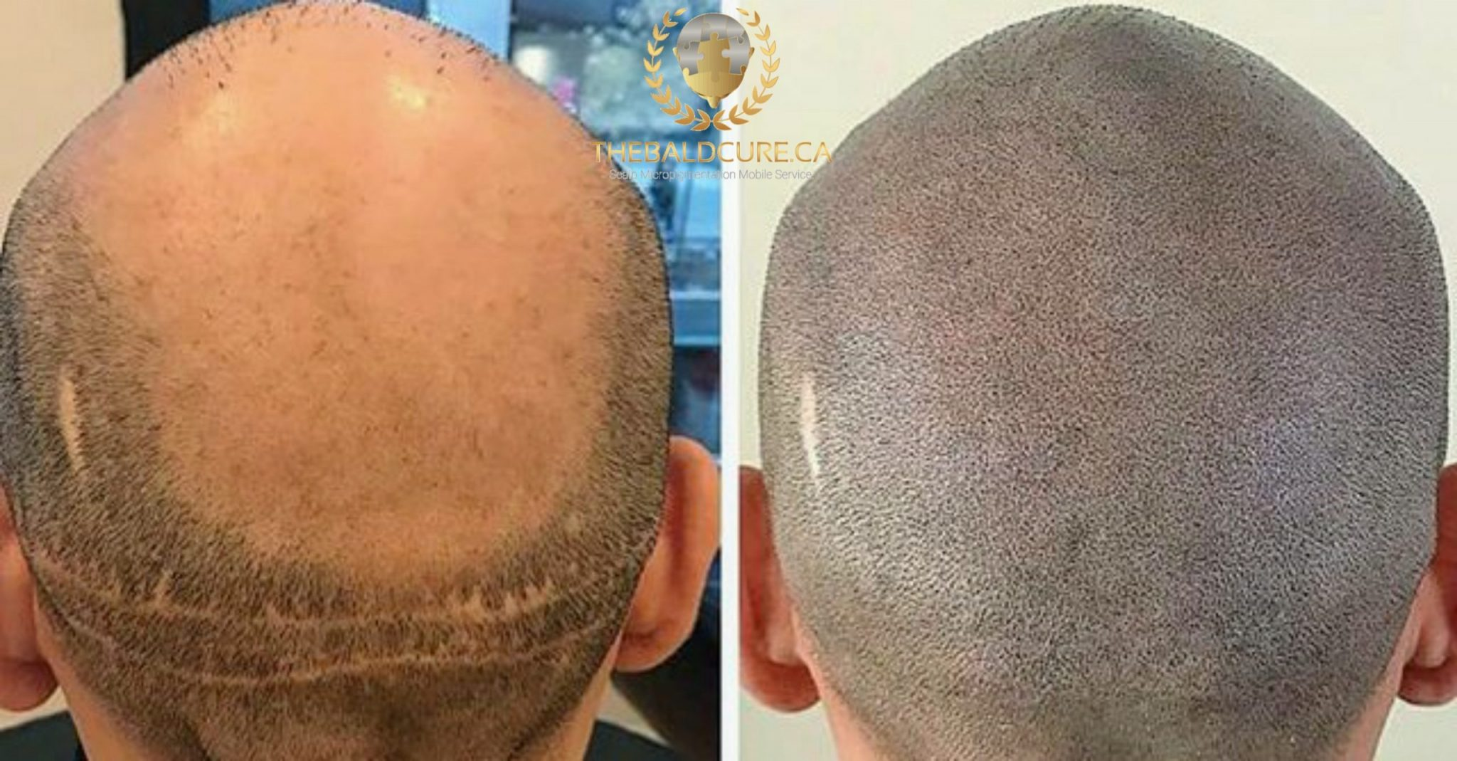 The Bald Cure Mobile Service In The Comfort Of Your Home We Beat Any Price PicsArt_03-20-10.26.59-scaled