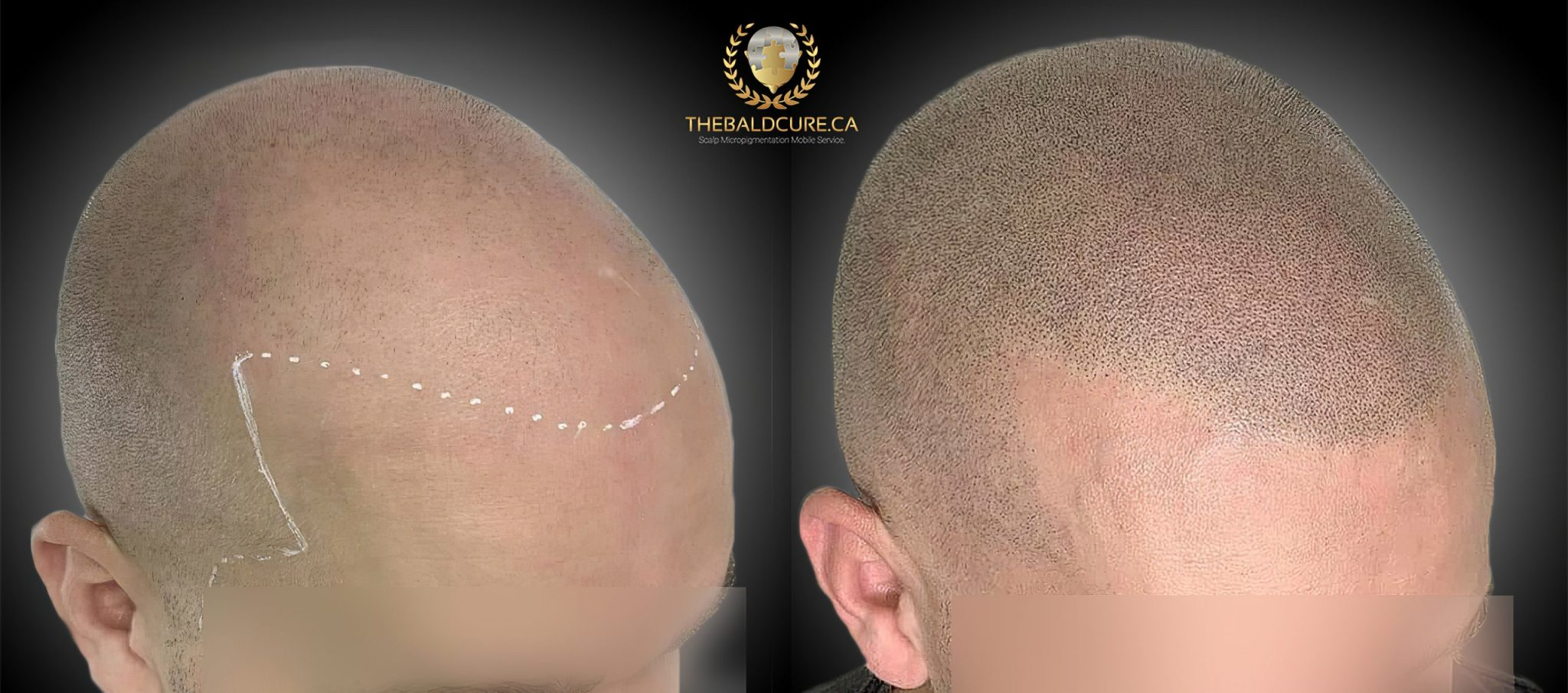 The Bald Cure Mobile Service In The Comfort Of Your Home We Beat Any Price 1-high-res-scaled Services & Pricing