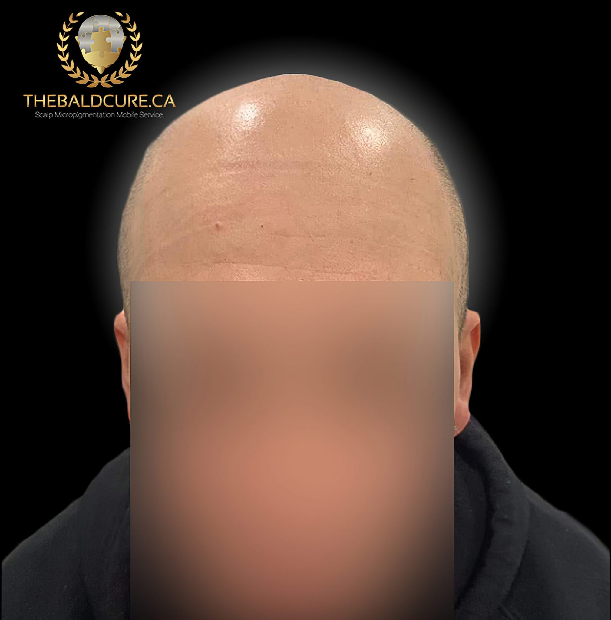 The Bald Cure Mobile Service In The Comfort Of Your Home We Beat Any Price 16-high-Resolution-scaled Pictures. Explore Our Photo Gallery