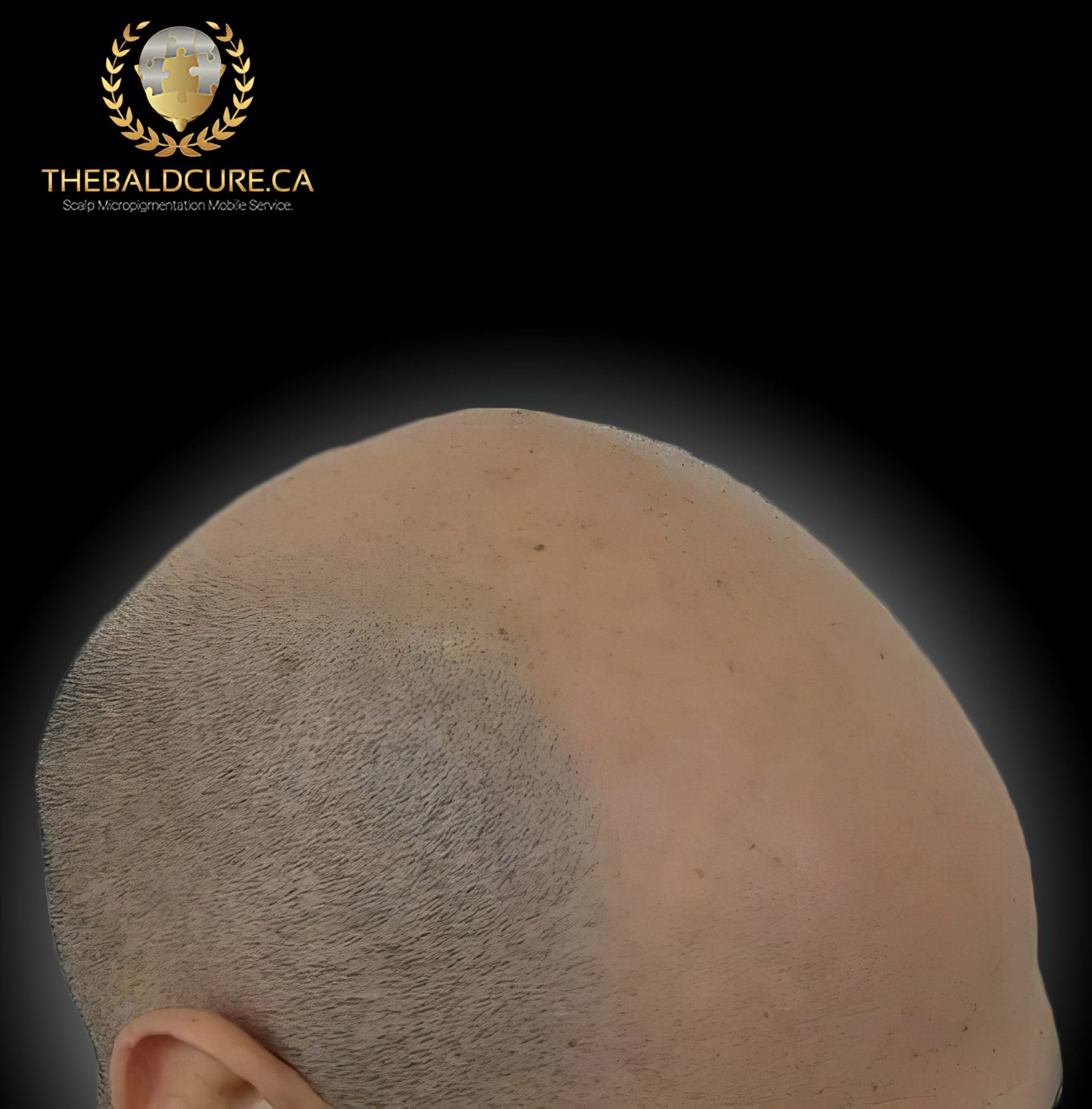 The Bald Cure Mobile Service In The Comfort Of Your Home We Beat Any Price 18-high-Resolution-scaled Pictures. Explore Our Photo Gallery