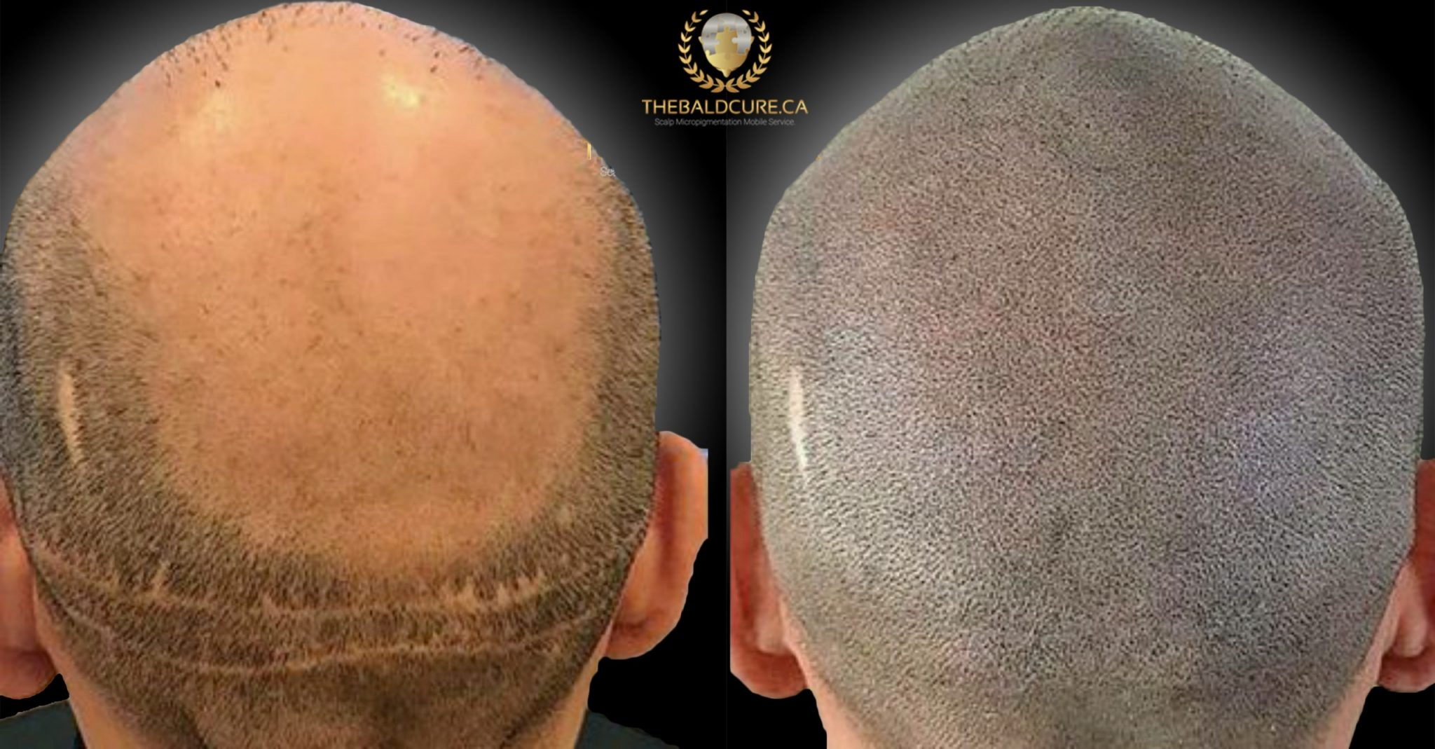 The Bald Cure Mobile Service In The Comfort Of Your Home We Beat Any Price 3-scaled Pictures. Explore Our Photo Gallery