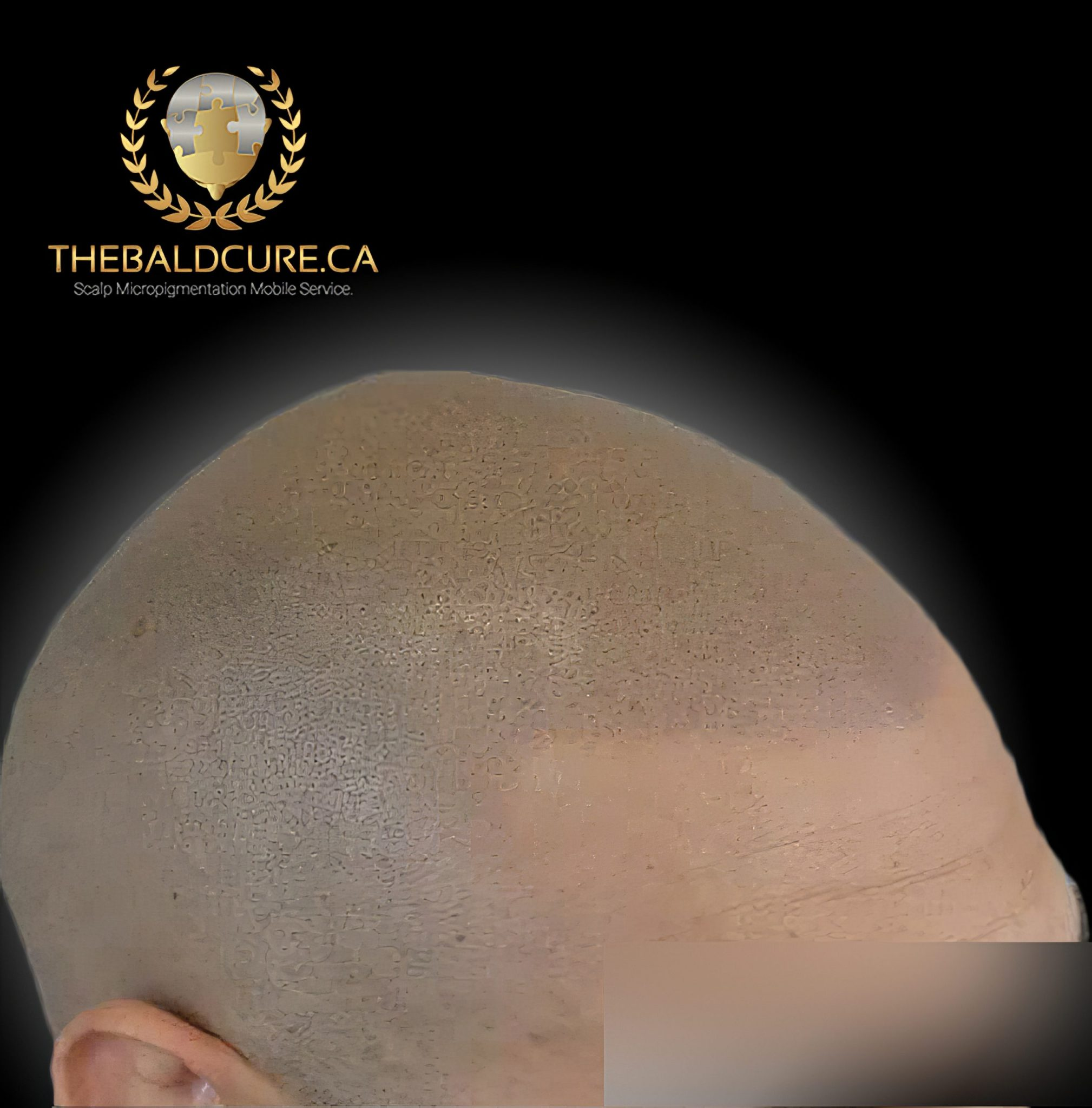The Bald Cure Mobile Service In The Comfort Of Your Home We Beat Any Price 4-high-Resolution-scaled Pictures. Explore Our Photo Gallery