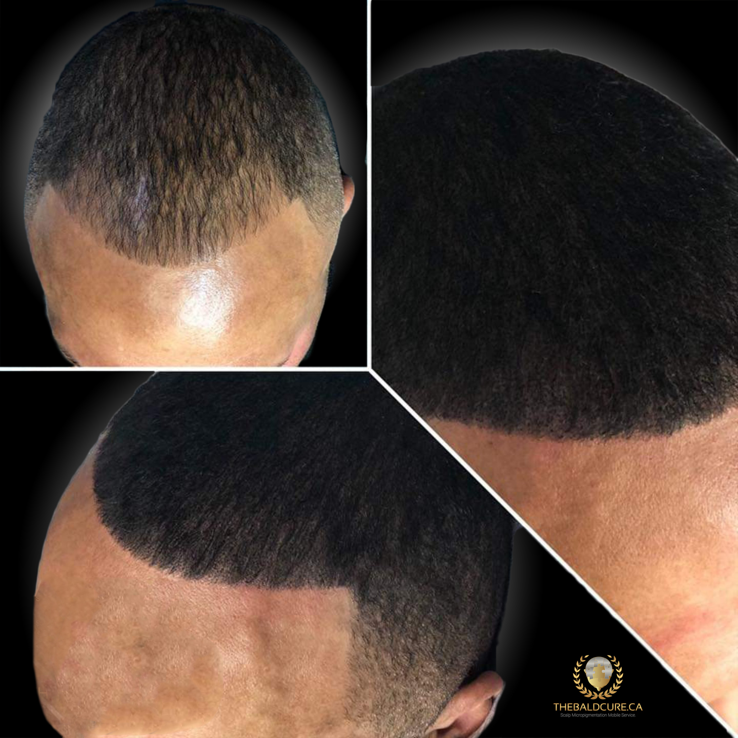 The Bald Cure Mobile Service In The Comfort Of Your Home We Beat Any Price 4 Pictures. Explore Our Photo Gallery