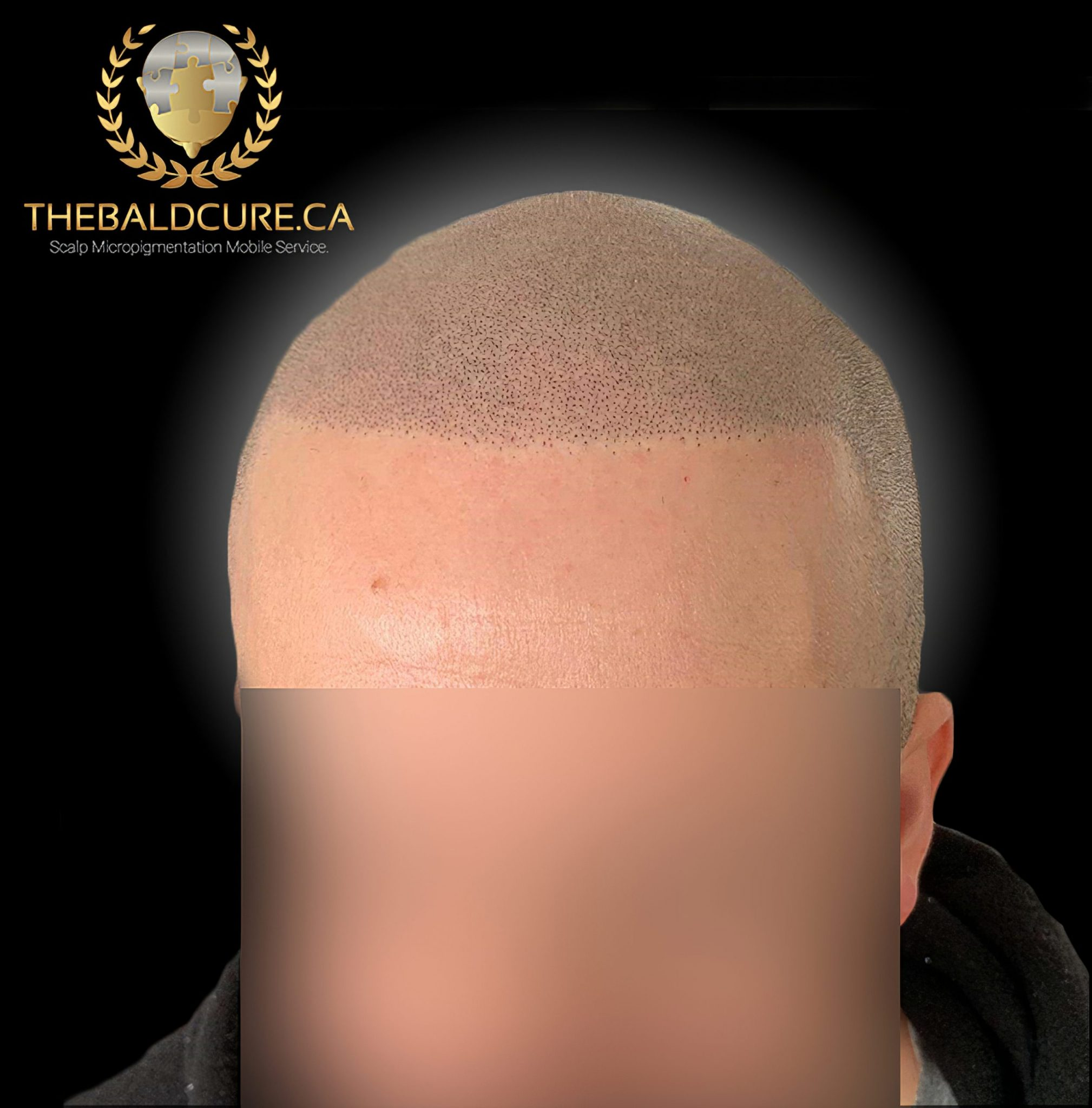 The Bald Cure Mobile Service In The Comfort Of Your Home We Beat Any Price 8-high-Resolution-scaled Pictures. Explore Our Photo Gallery